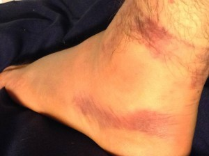 August 2013 - Ankle Injury 2