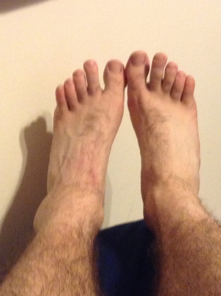 August 2013 - Ankle Injury